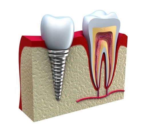 Dental Implants: The Modern Method of Tooth Replacement