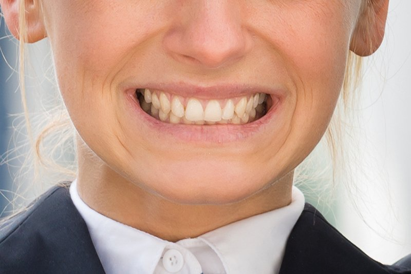woman grinding teeth bruxism